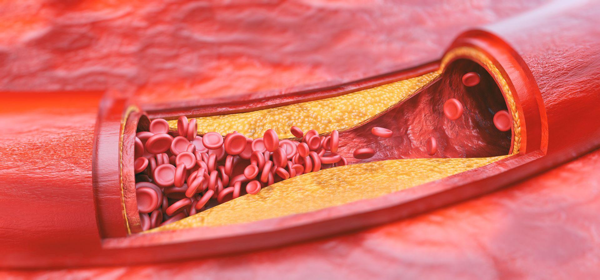 Cholesterol całkowity - cholesterol LDL i HDL - czym się różnią, jakie normy cholesterolu są dopuszczalne?