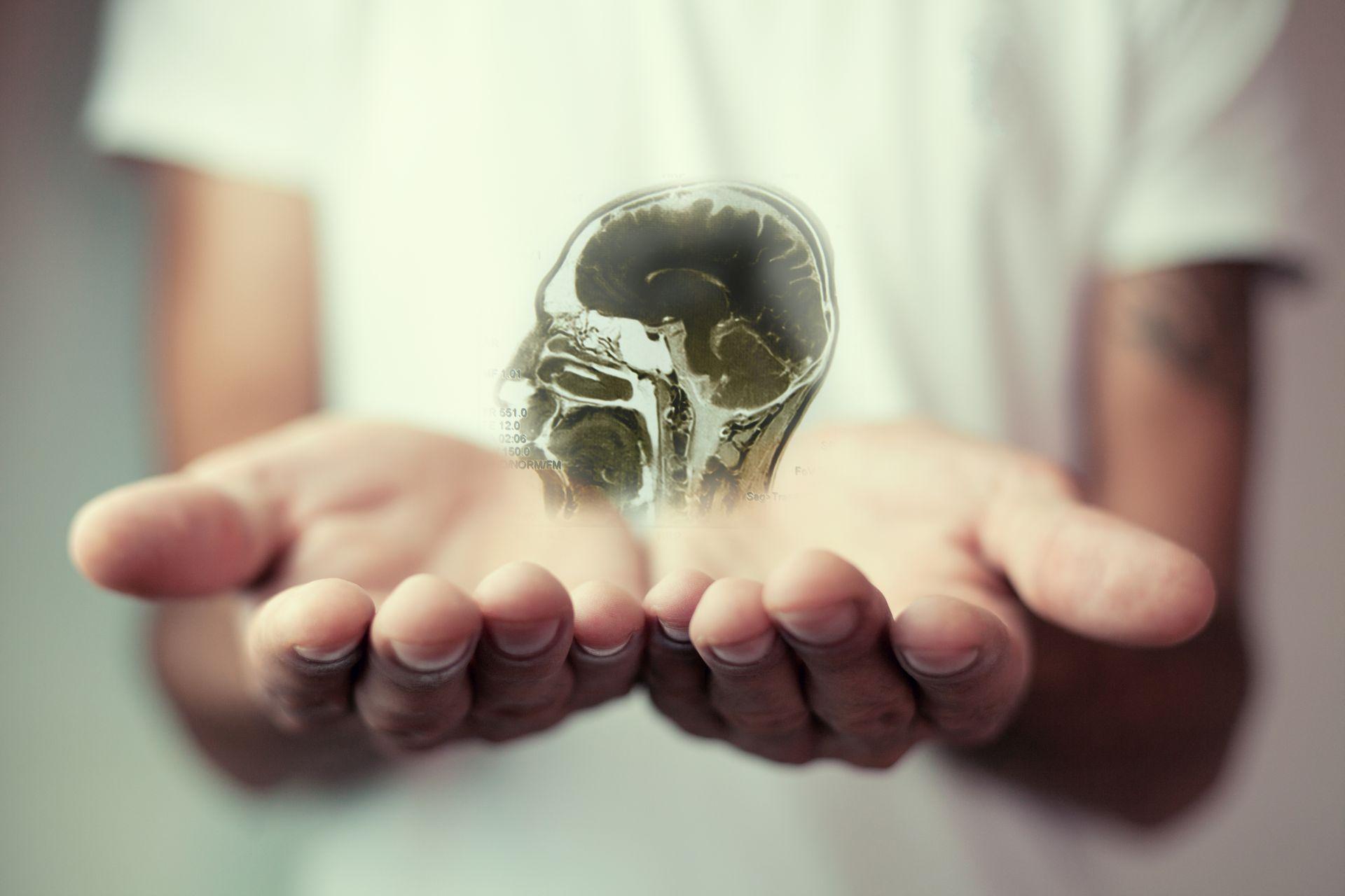 Objawy udaru mózgu - jak je rozpoznać i stosować profilaktykę?
